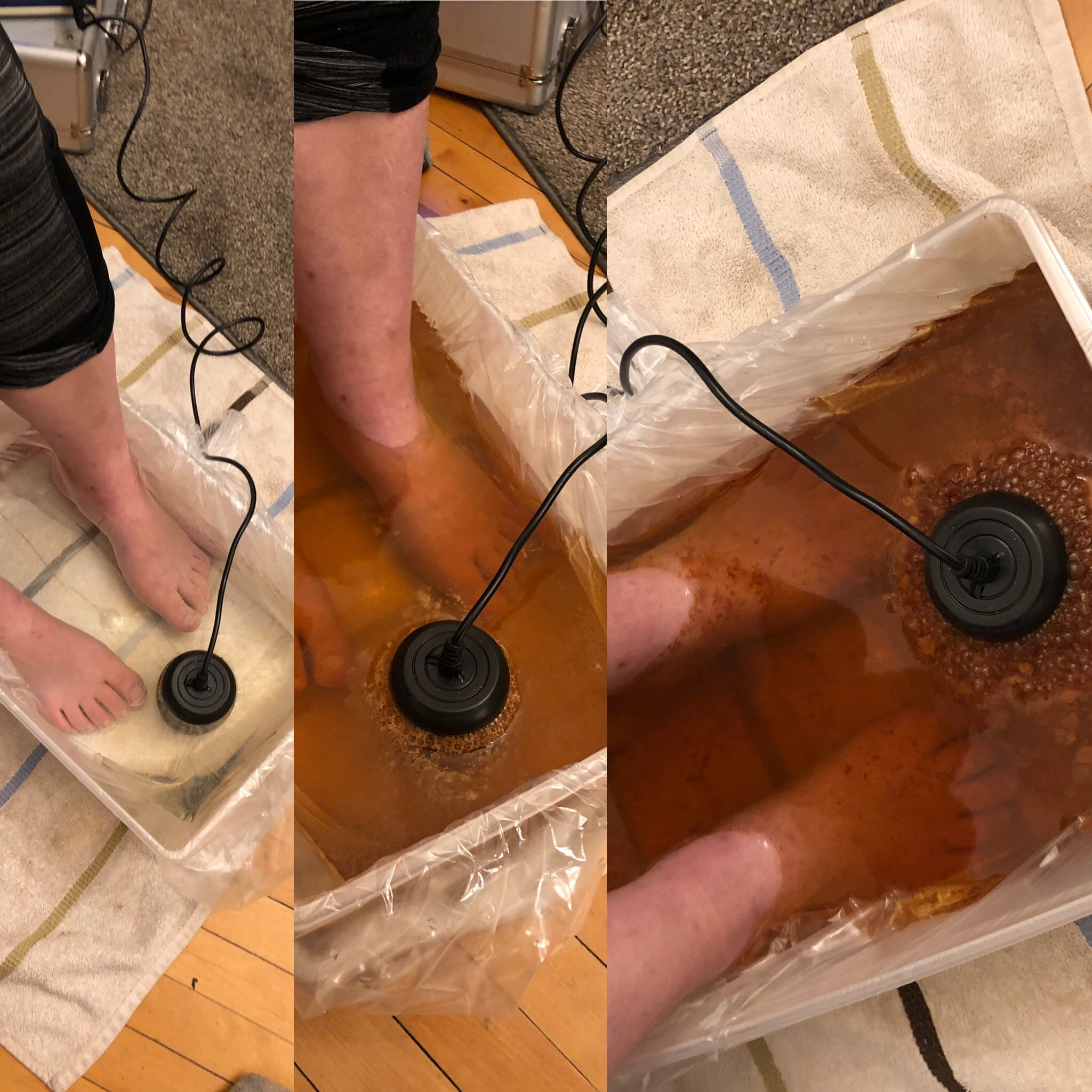 pic showing three stages of Ionic Foot detox